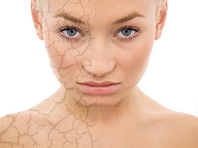 frost peel mocne peelingi kwasami zabiegi kosmetyczne Kożuchów
