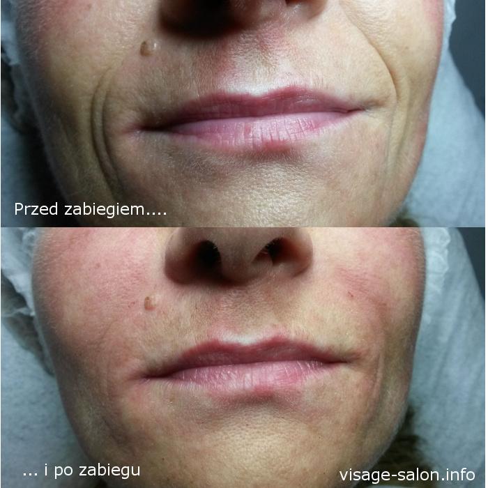 wypełnienie bruzd przynosowych - usuwanie zmarszczek, bruzd koło nosa