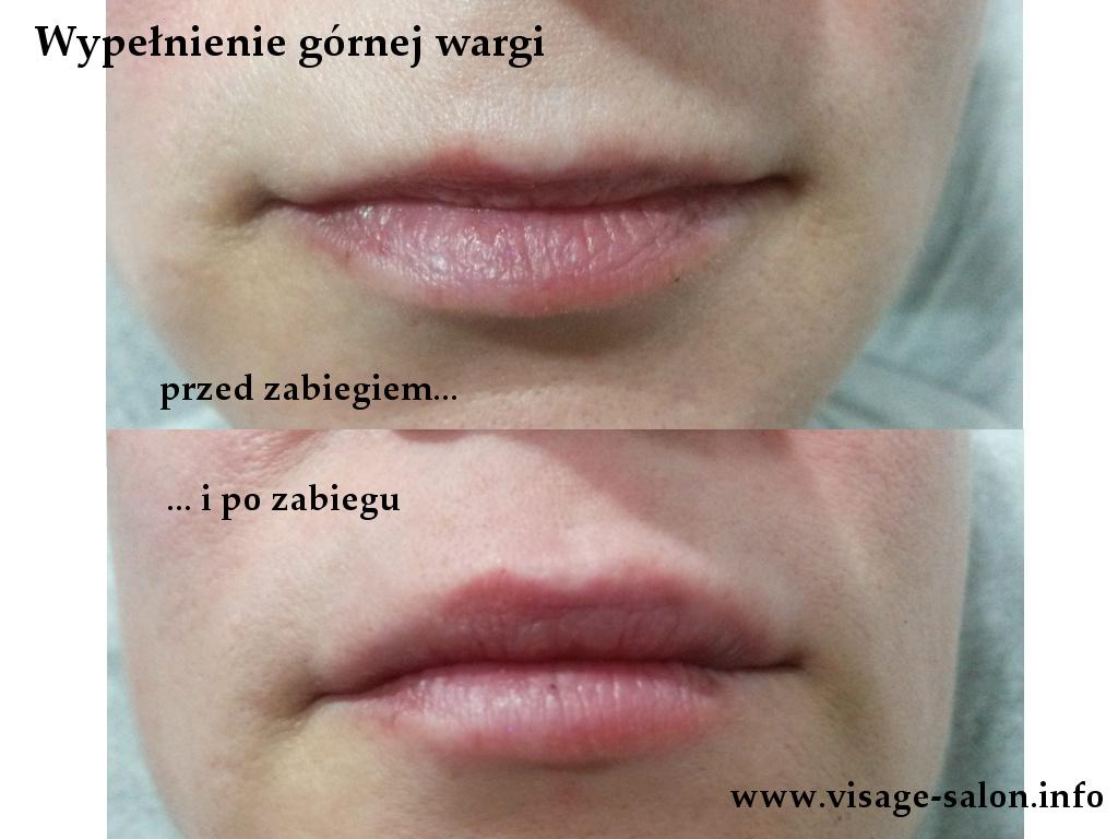 powiększanie ust wypełnianie warg kosmetyczka Kożuchów - salon Visage