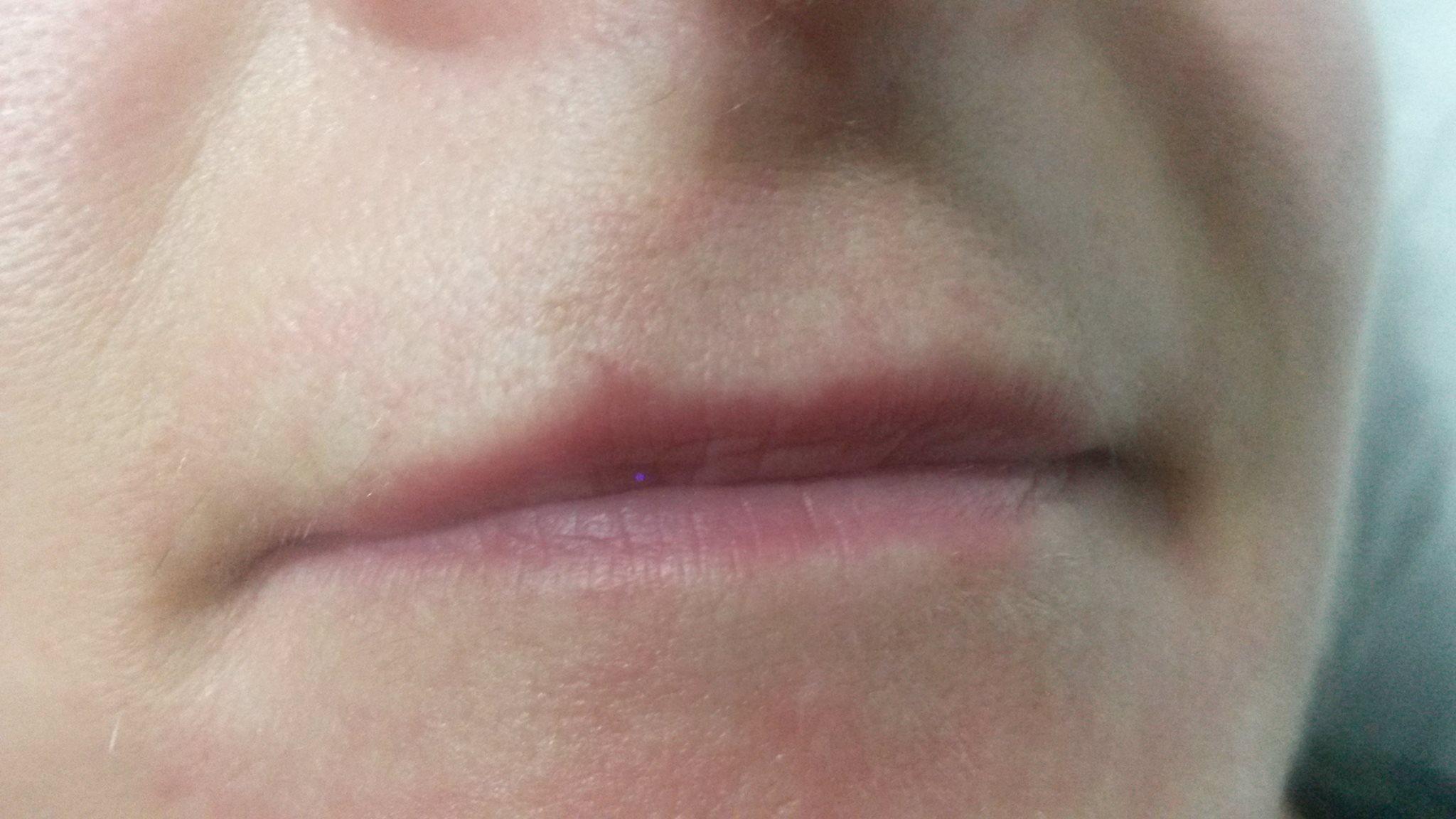 powiększanie, wypełnianie ust kosmetyczka w Kożuchowie - salon Visage