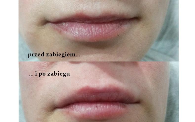 Wypełnienie górnej wargi – powiększanie ust